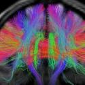 El mapa más detallado del cerebro humano