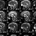 Médicos utilizan tecnología espacial para investigaciones sobre Alzheimer