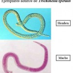 Trichinella spiralis 3