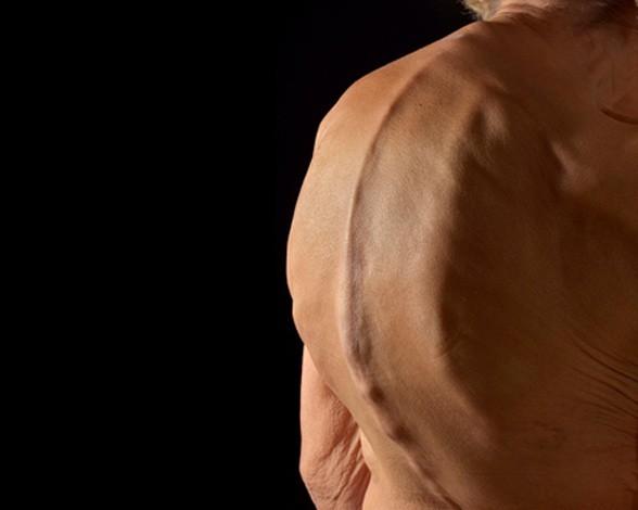 11. Curvatura de la columna vertebral