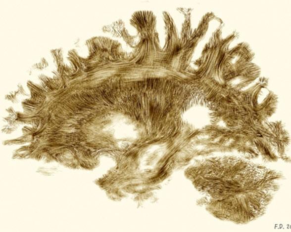 7. Cableado del cerebro